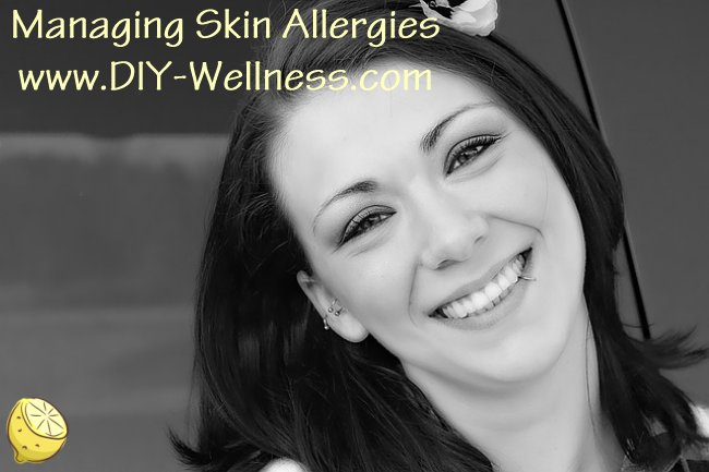 Managing Skin Allergies