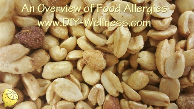 An Overview of Food Allergies