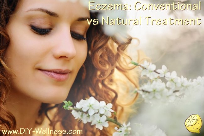 Eczema: Conventional vs. Natural Treatment